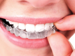 Invisalign aparelho ortodôntico alinhadores dentários